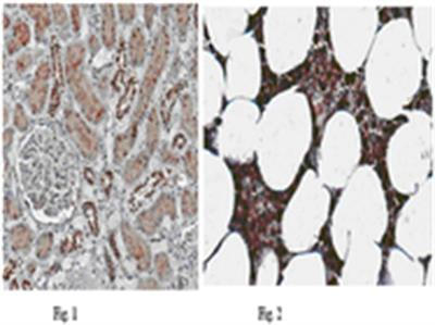 Anti-NLRP6 (NALP6) Antibody