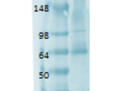 SLC5A5 / NIS Monoclonal Antibody