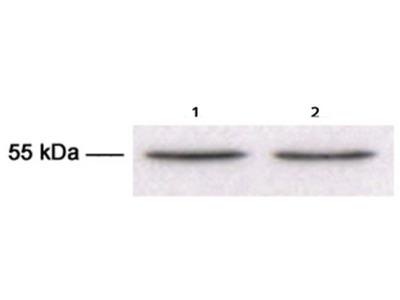 anti TUBB3 / TUBB4 (tubulin beta-3 chain)