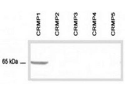 anti GAT1 / SLC6A1