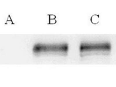 anti ABCC7 / CFTR