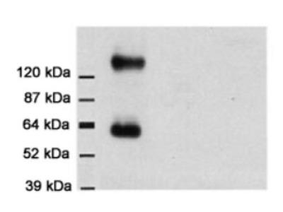 anti SLC1A3 / EAAT1
