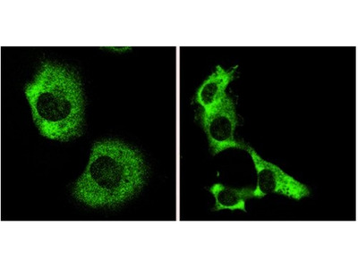 AMBRA1 rabbit polyclonal antibody, Serum