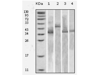 anti Thioredoxin / TRX1 (TRX-tag)