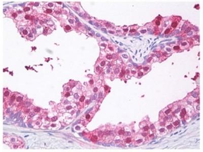 RNF103-CHMP3 rabbit polyclonal antibody, Purified