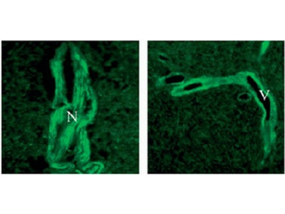 TMTC3 rabbit polyclonal antibody, Serum