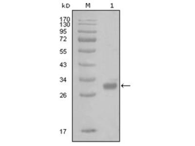 anti Thrombin receptor / F2R