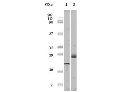 anti EIF4EBP1 / 4E-BP1