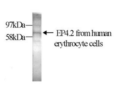 anti EPB42 / E42P