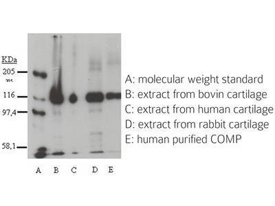 COMP rabbit polyclonal antibody, Purified