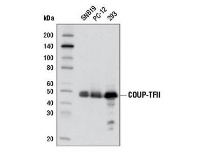 COUP-TFII (D16C4) Rabbit mAb