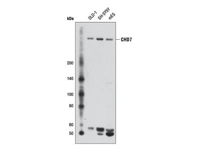 CHD7 (D3F5) Rabbit mAb