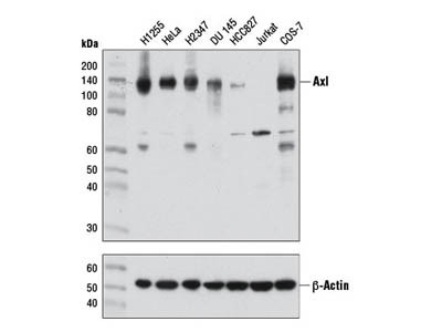 Axl (C89E7) Rabbit mAb