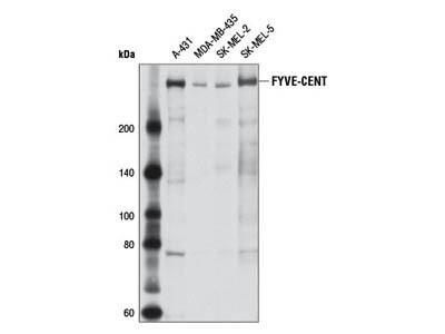 FYVE-CENT Antibody