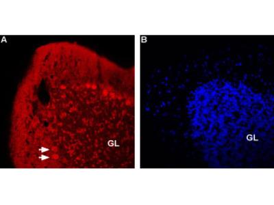 Anti-Nicotinic Acetylcholine Receptor beta2 (CHRNB2) (extracellular)-ATTO-594 Antibody