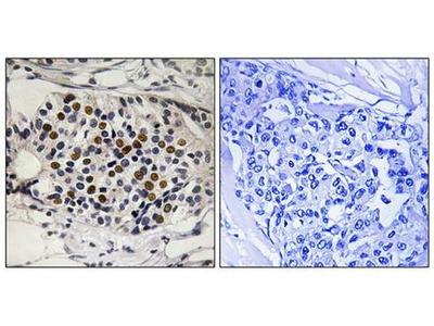 CDKN2A (phospho-Ser152) antibody