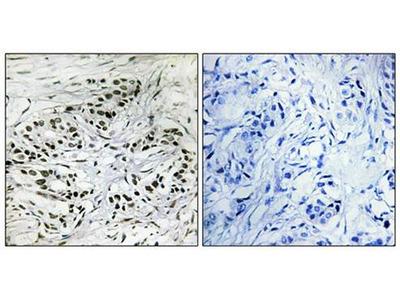 ERF antibody