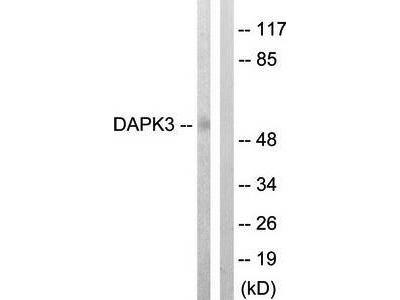 DAPK3 antibody
