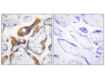 PHLA2 antibody