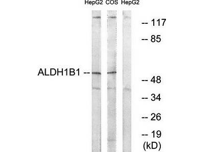 ALDH1B1 antibody