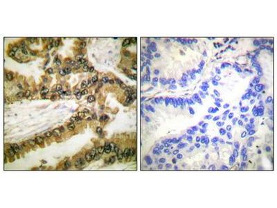 AKT (phospho-Thr450) antibody