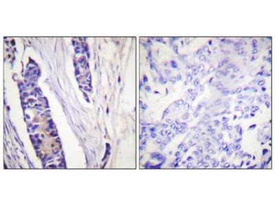 Tubulin beta antibody