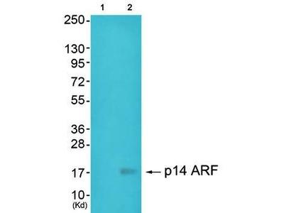 p14 ARF antibody