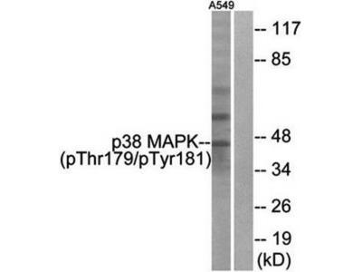 p38 MAPK (phospho-Thr179+Tyr181) antibody