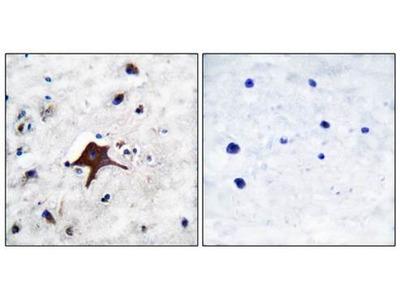 GLUT3 antibody