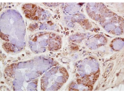 CKMT antibody