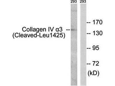 Collagen IV (Cleaved-Leu1425) antibody