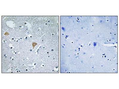 CTRO antibody
