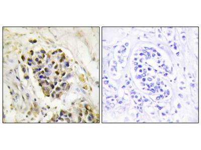 MED1 antibody