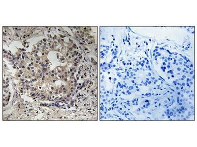 S6 Ribosomal Protein (phospho-Ser235+Ser236) antibody