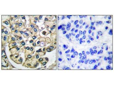 FGFR2 antibody