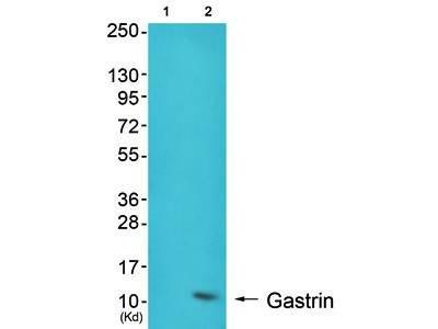 Gastrin Receptor antibody
