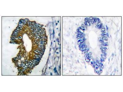 Cytokeratin 18 antibody