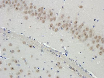 Filaggrin antibody