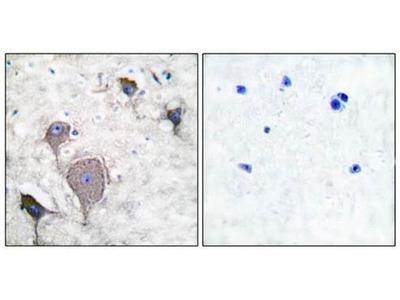 Peripherin antibody