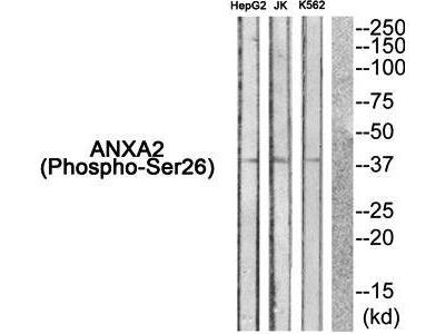 ANXA2 (phospho-Ser26) antibody