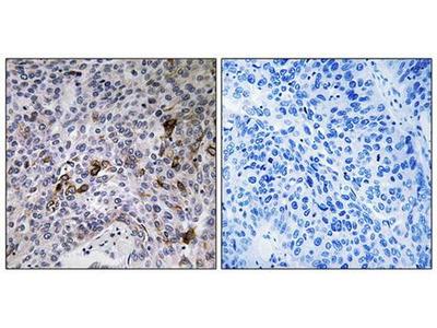 RAB11FIP3 antibody