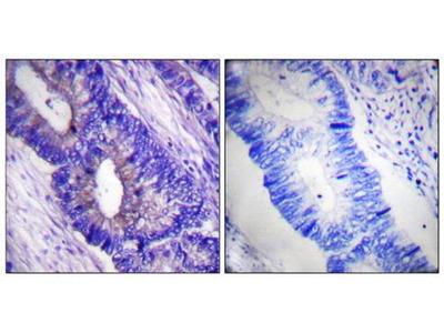 PKA alpha/beta CAT (phospho-Thr197) antibody