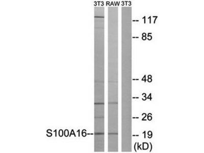 S100A16 antibody