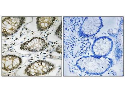 ATR (phospho-Ser428) antibody