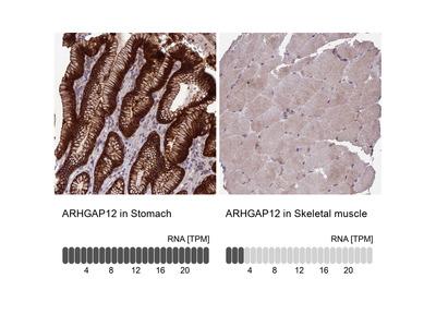Anti-ARHGAP12 Antibody