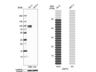 Anti-GSPT2 Antibody