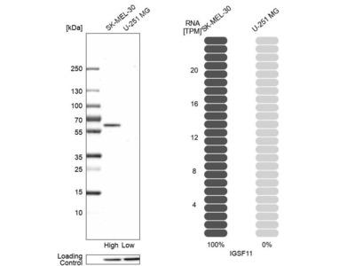 Anti-IGSF11 Antibody