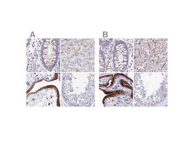 Anti-SPNS1 Antibody