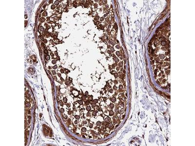 Anti-LSM7 Antibody