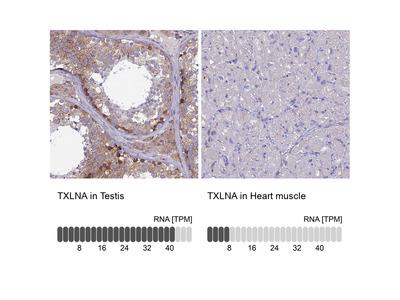 Anti-TXLNA Antibody